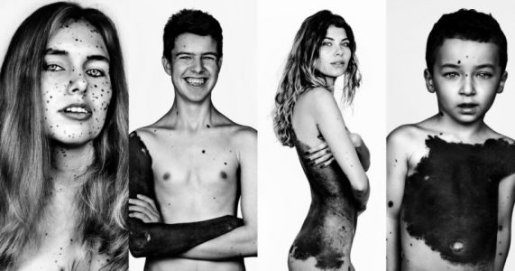 Portraits of People with an Ultra-Rare Type of Body-Covering Birthmark